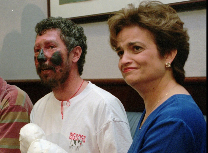 **ADVANCE FOR WEEKEND EDITIONS, MAY 24-25** FILE** Dr. Seaborn Beck Weathers, his face blackened from severe frostbite, sits with his wife Margaret, as he talks about his Mount Everest ordeal, in this May 16, 1996 file photo, at Dallas-Fort Worth International Airport in Grapevine, Texas. Weathers, nearly blinded while trying to climb Everest and then trapped in a vicious storm on his way down, lay unconscious on the side of the mountain before a helicopter rescued him. (AP Photo/Bill Janscha, File)